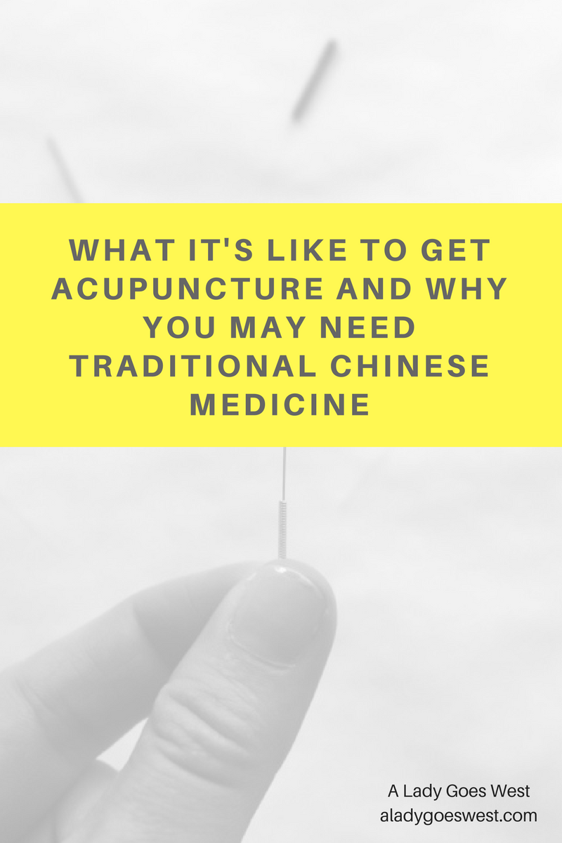 What its like to get acupuncture and why you may need traditional what its like to get acupuncture and why you may need traditional chinese medicine fandeluxe Image collections